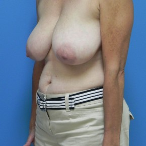 Before Photo - Breast Reduction - Case #4188 - Bilateral Breast Reduction - Oblique View