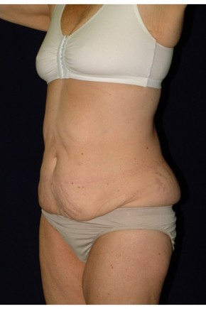 Before Photo - Mommy Makeover - Case #4294 - Oblique View