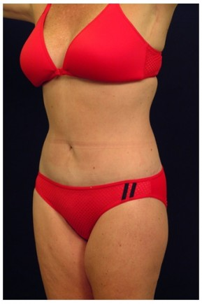After Photo - Mommy Makeover - Case #4294 - Oblique View