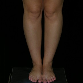 Before Photo - Liposuction - Case #4333 - Calf and Ankle Liposculpture - Frontal View