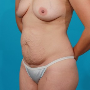 Before Photo - Tummy Tuck - Case #4336 - Abdominoplasty - Oblique View