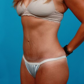 After Photo - Tummy Tuck - Case #4336 - Abdominoplasty - Oblique View
