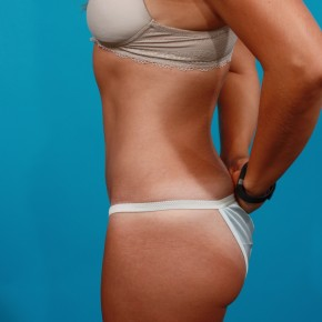 After Photo - Tummy Tuck - Case #4336 - Abdominoplasty - Lateral View