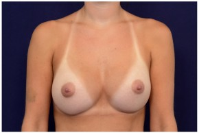 After Photo - Breast Augmentation - Case #4340 - Frontal View
