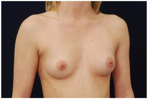 Before Photo - Breast Augmentation - Case #4341 - Oblique View