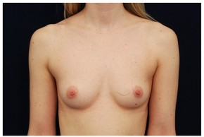 Before Photo - Breast Augmentation - Case #4342 - Frontal View