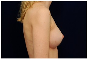 After Photo - Breast Augmentation - Case #4342 - Lateral View