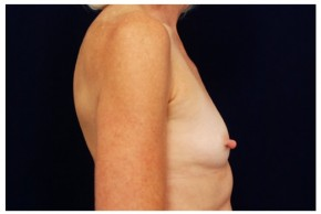 Before Photo - Breast Augmentation - Case #4344 - Lateral View