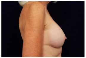 After Photo - Breast Augmentation - Case #4344 - Lateral View