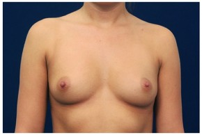 Before Photo - Breast Augmentation - Case #4345 - Frontal View