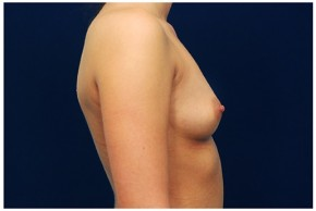 Before Photo - Breast Augmentation - Case #4345 - Lateral View