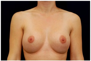 After Photo - Breast Augmentation - Case #4346 - Frontal View