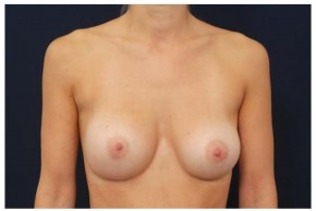 After Photo - Breast Augmentation - Case #4347 - Frontal View