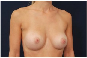 After Photo - Breast Augmentation - Case #4347 - Oblique View