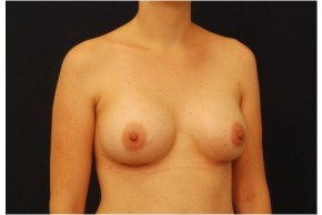 After Photo - Breast Augmentation - Case #4348 - Oblique View