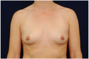 Before Photo - Breast Augmentation - Case #4354 - Frontal View
