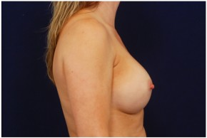 After Photo - Breast Augmentation - Case #4354 - Lateral View