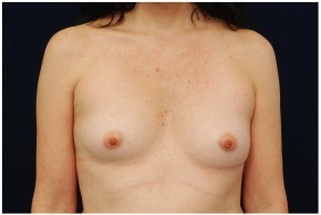 Before Photo - Breast Augmentation - Case #4355 - Frontal View