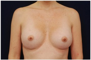 After Photo - Breast Augmentation - Case #4355 - Frontal View