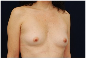 Before Photo - Breast Augmentation - Case #4355 - Oblique View