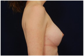 After Photo - Breast Augmentation - Case #4355 - Lateral View