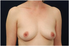 Before Photo - Breast Augmentation - Case #4356 - Oblique View
