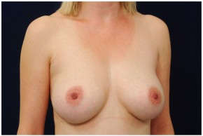 After Photo - Breast Augmentation - Case #4356 - Oblique View