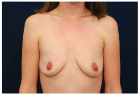 Before Photo - Breast Augmentation - Case #4357 - Frontal View
