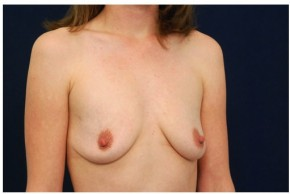 Before Photo - Breast Augmentation - Case #4357 - Oblique View
