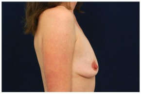 Before Photo - Breast Augmentation - Case #4357 - Lateral View