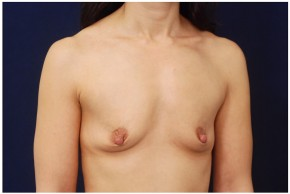 Before Photo - Breast Augmentation - Case #4358 - Oblique View