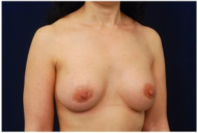 After Photo - Breast Augmentation - Case #4358 - Oblique View