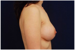 After Photo - Breast Augmentation - Case #4358 - Lateral View