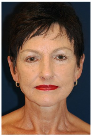 After Photo - Facelift - Case #4359 - Frontal View