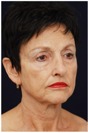Before Photo - Facelift - Case #4359 - Oblique View