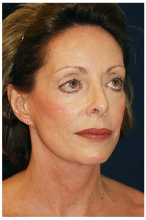 Before Photo - Facial Rejuvenation - Case #4369 - Full Facial Rejuvenation - Posterior Oblique View