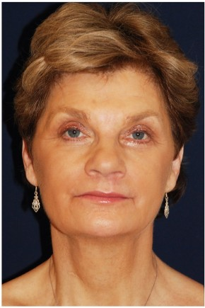 After Photo - Facial Rejuvenation - Case #4370 - Full Facial Rejuvenation - Frontal View