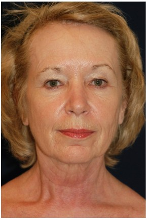 Before Photo - Facial Rejuvenation - Case #4371 - Full Facial Rejuvenation - Frontal View
