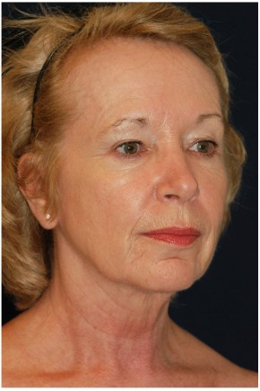 Before Photo - Facial Rejuvenation - Case #4371 - Full Facial Rejuvenation - Oblique View