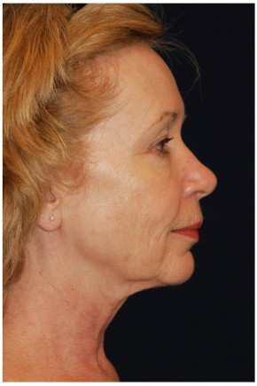 Before Photo - Facial Rejuvenation - Case #4371 - Full Facial Rejuvenation - Lateral View
