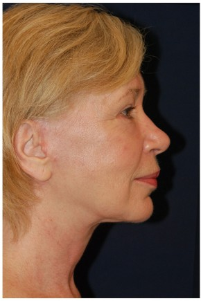 After Photo - Facial Rejuvenation - Case #4371 - Full Facial Rejuvenation - Lateral View