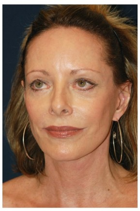 After Photo - Facial Rejuvenation - Case #4369 - Full Facial Rejuvenation - Oblique View