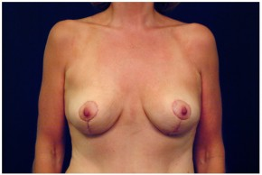 After Photo - Breast Lift - Case #4372 - Frontal View