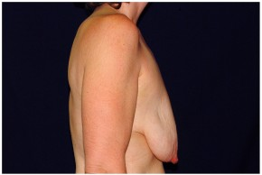 Before Photo - Breast Lift - Case #4372 - Lateral View