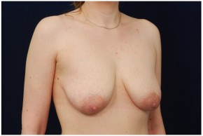 Before Photo - Breast Lift - Case #4373 - Oblique View