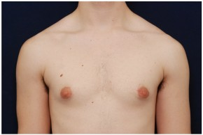 Before Photo - Gynecomastia - Case #4374 - Frontal View