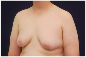 Before Photo - Gynecomastia - Case #4375 - Oblique View