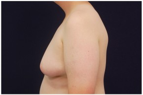 Before Photo - Gynecomastia - Case #4375 - Lateral View