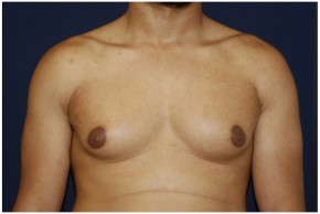Before Photo - Gynecomastia - Case #4376 - Frontal View