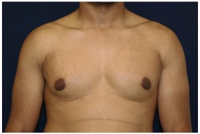 After Photo - Gynecomastia - Case #4376 - Frontal View